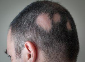 Haarsprechstunde