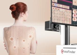 Neustes Ganzkörperdokumentationssystem für eine optimale Hautkrebsvorsorge