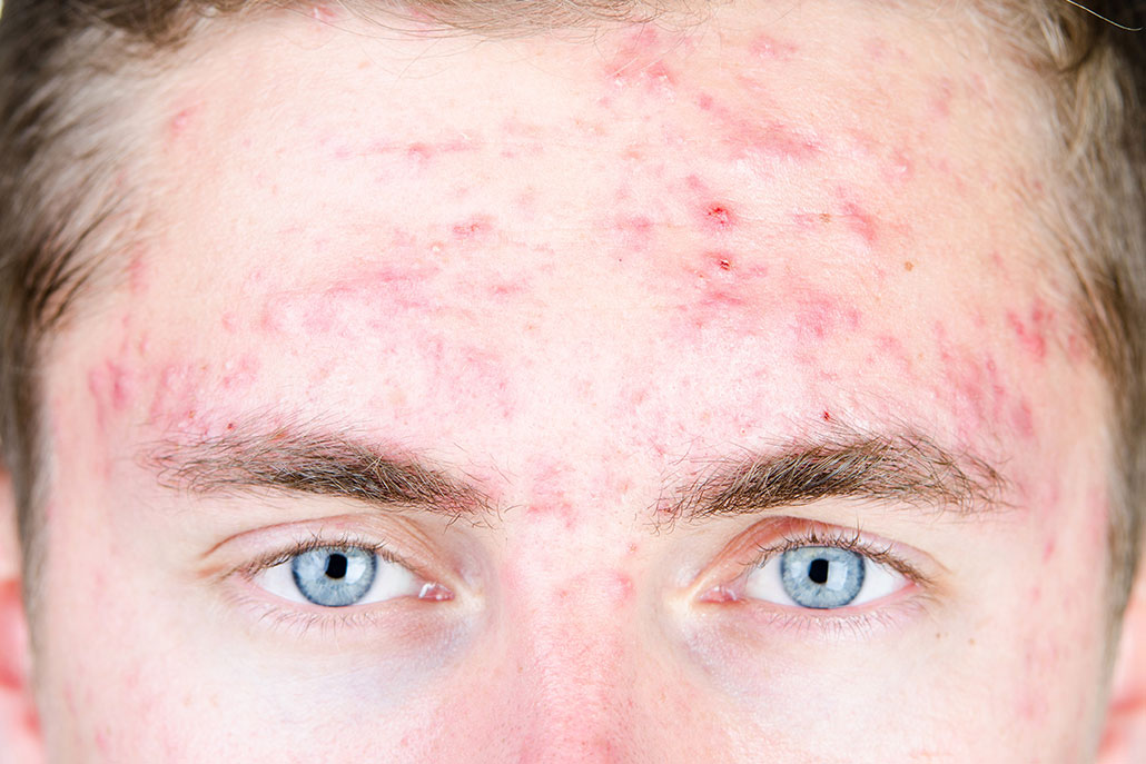 Junger Mann mit Akneprobleme auf der Stirn