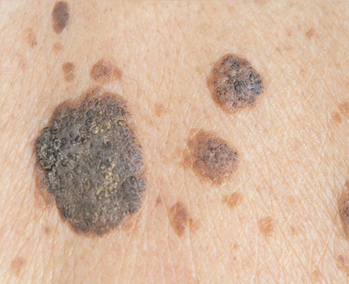 Große Alterswarzen auf der Haut