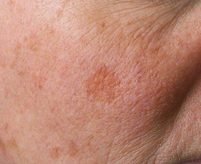 Eine Frau mit Hautpigmentierung auf der Wange