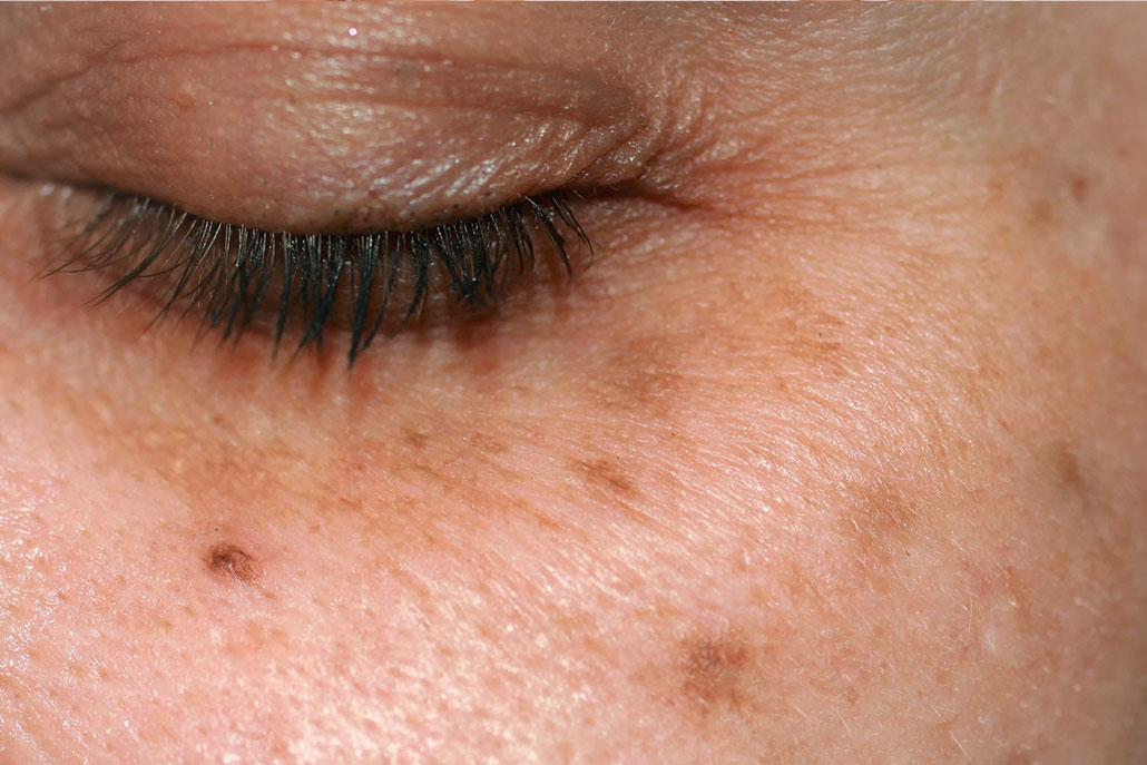 Eine Frau mit Hautpigmentierung im Gesicht