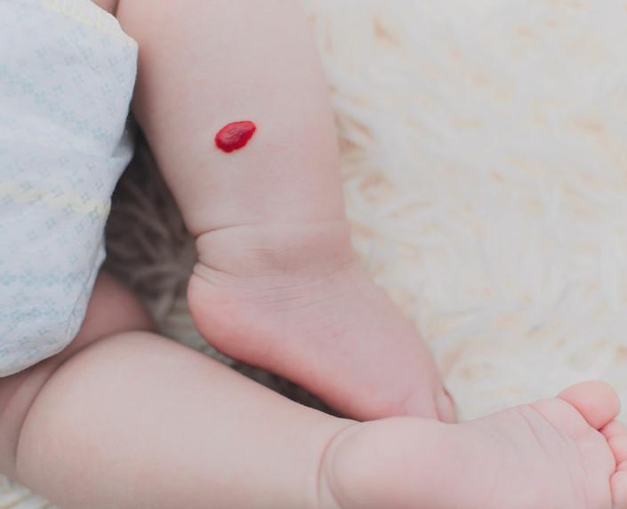 Ein Baby mit Hämangiom auf der Haut