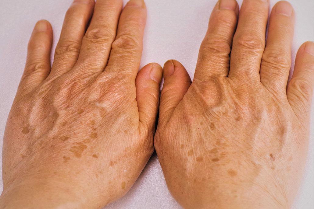 Hände einer älteren Frau mit Lintigines und Sonnenflecken